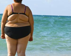 лишний вес, ожирение